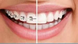 Clinicas Dentales